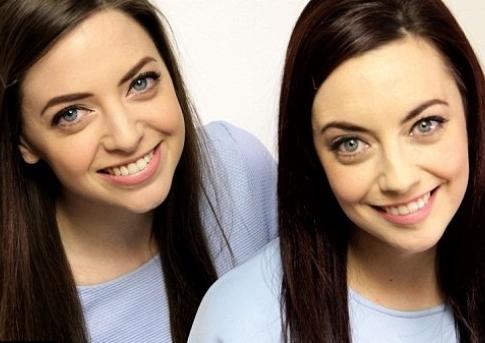 Niet biologische tweeling